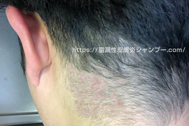 脂漏性皮膚炎のつらい症状(かゆみやフケ)