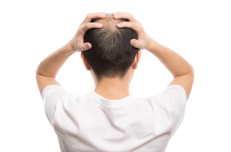 脂漏性皮膚炎の抜け毛、ハゲ