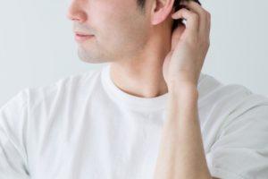脂漏性皮膚炎の抜け毛、ハゲを改善する人